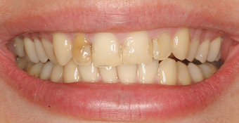 Porcelain Veneers before 88894