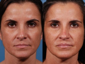 Revision rhinoplasty before 435954