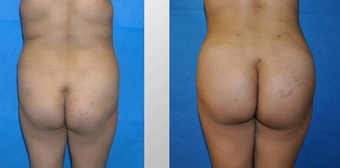 Buttock augmentation by fat transfer before 163653