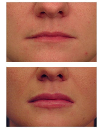 Juvederm before 301132