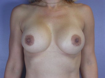 Breast Augmentation  after 304987