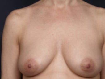 Breast Lift before 140829