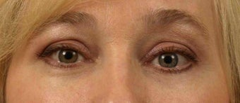 Lower Eyelid/Tear-Trough Restyalne after 467136