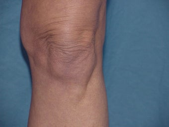 Thermage of knee before before 109791