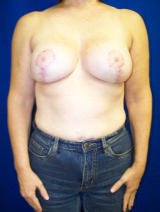 Revisionary breast augmentation with a lift after 124919