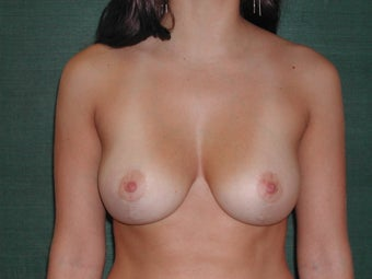 Vertical Breast Reduction after 117050