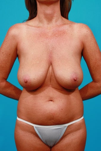 Mommy Makeover: Tummy Tuck, Breast Lift, Flank Lipo before 250634