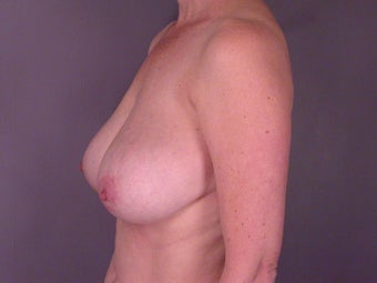 Breast Reduction  before 306348
