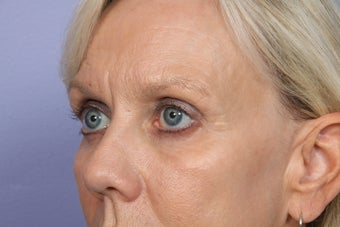 Eyelid Surgery after 306431