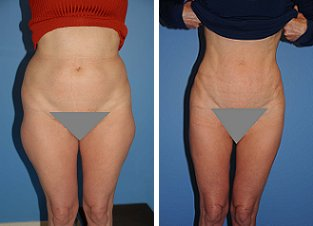 Liposuction before 636190