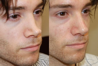 Non-Surgical Rhinoplasty with Silikon-1000 for permanent results. before 216826