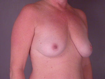 BREAST LIFT/ BREAST AUGMENTATION before 280028