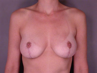 Breast Lift after 321463