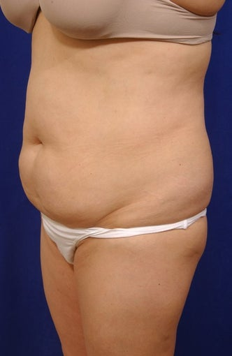 Abdominoplasty with liposculpture of abs, flanks, and waist before 82417