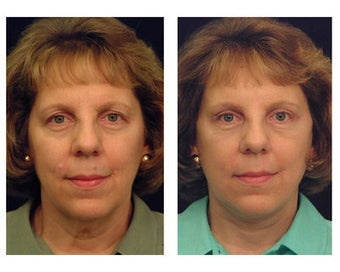 Lower Face and Neck Lift before 355119