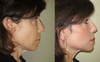 Small Image Lift, Full Face Laser Resurfacing after 351058