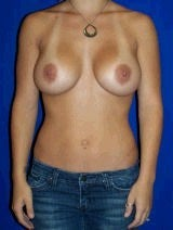 Breast Augmentation Surgery after 144634
