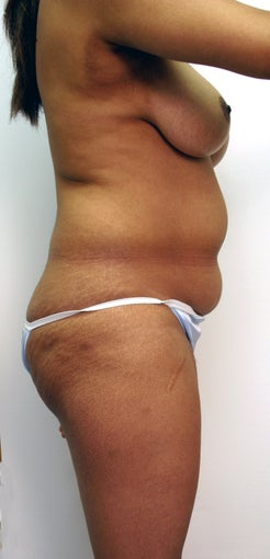 Liposuction with fat grafting / transfer to buttocks before 535831
