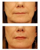 Perlane and Juvederm Injections for wrinkles and lip augmentation before 53753