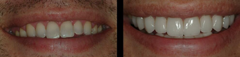 Smile Makeover with Veneers before 58930