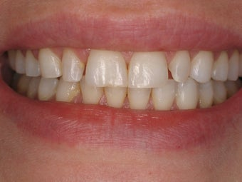 10 Porcelain Veneers before 511425