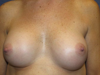 Breast Augmentation after 465611