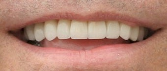 Porcelain Veneers Before and After (Smile Makeover) after 206793