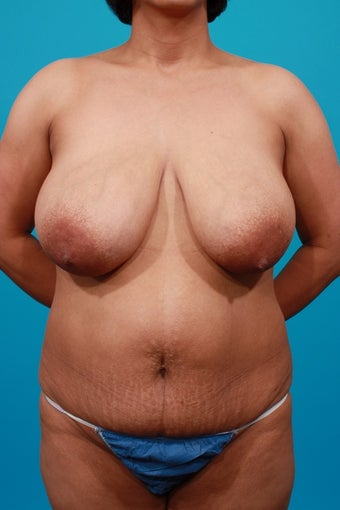 Mommy Makeover: Breast Reduction & Tummy Tuck before 207546