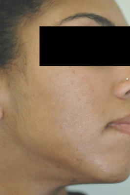 Laser Acne Treatment after 82952