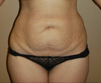 tummy tuck before 260532