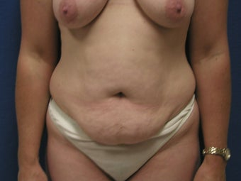 Abdominoplasty before 475881