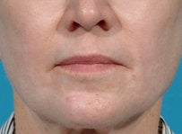 Laser resurfacing-Erbium ablative resurfacing after 459010
