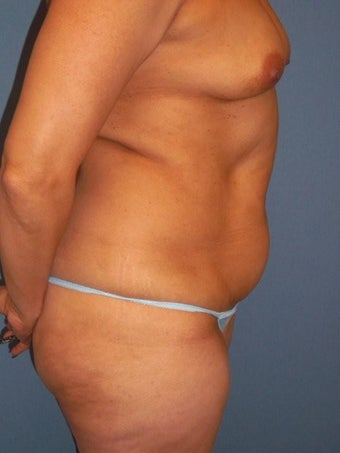 Tummy Tuck before 340068