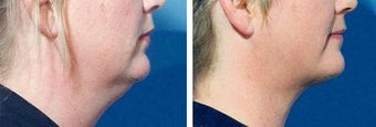 Chin Liposuction before 640709