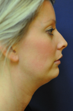 Jawline / Neck Lipo before 624697