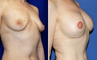DIEP Instant Implant Breast Reconstruction before 331148