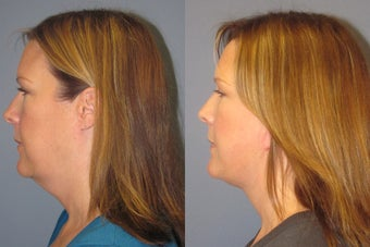 Lite Lift, liposuction of the neck, blue peel after 523484