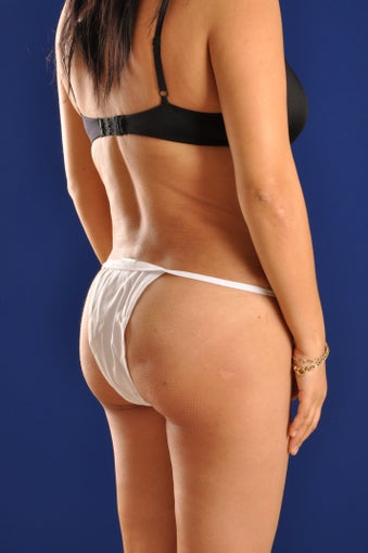 Vaser Hi Def Liposuction of the back and flanks with fat injections to the buttocks after 422742