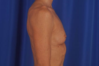 Breast Augmentation 619488