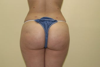 Butt augmentation after 459635