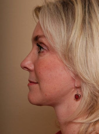 Refresher Facelift w/Neck Plication, Browllift, Fat Injections to Cheeks after 252876