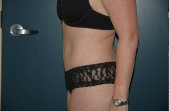 Tummy tuck after 283875