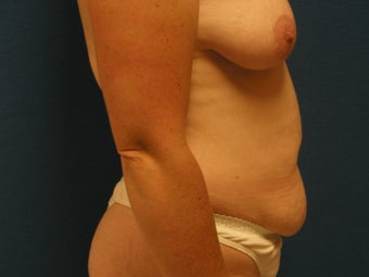 Abdominoplasty 475881
