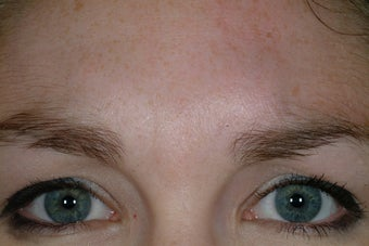 Chemical Brow lift before 89241