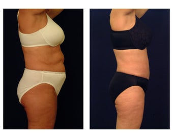 Liposuction 397053