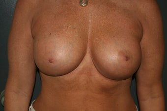 Breast implants after 241853