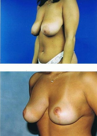 Mastopexy (breastlift) before 83400