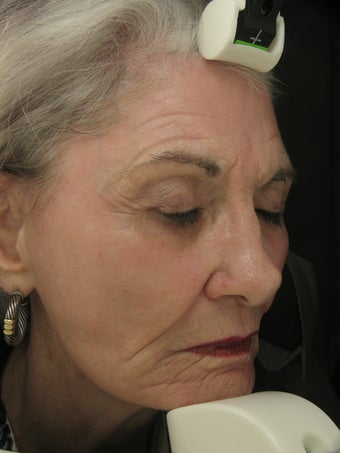 Fraxel Dual Laser 1550 and 1927 Facial Pigmentation and Wrinkles after 186074