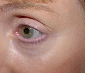Affirm treatment of eye area wrinkles (crowsfeet) before 109815
