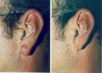 Earlobe Surgery before 243322